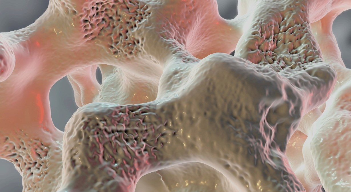 Spongy bone tissue affected by osteoporosis